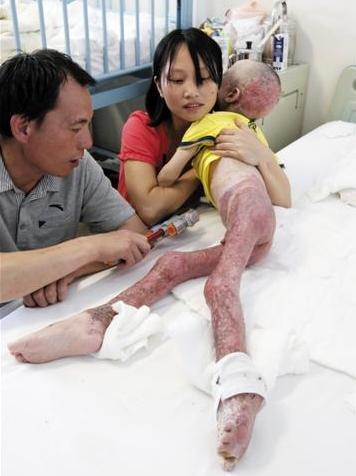 来自福建莆田的小海在304医院接受治疗 竖